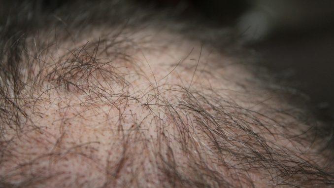Mann mit wenig Haaren auf dem Kopf